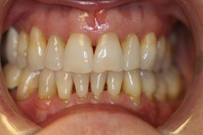 Gaps, Chips and Discoloration